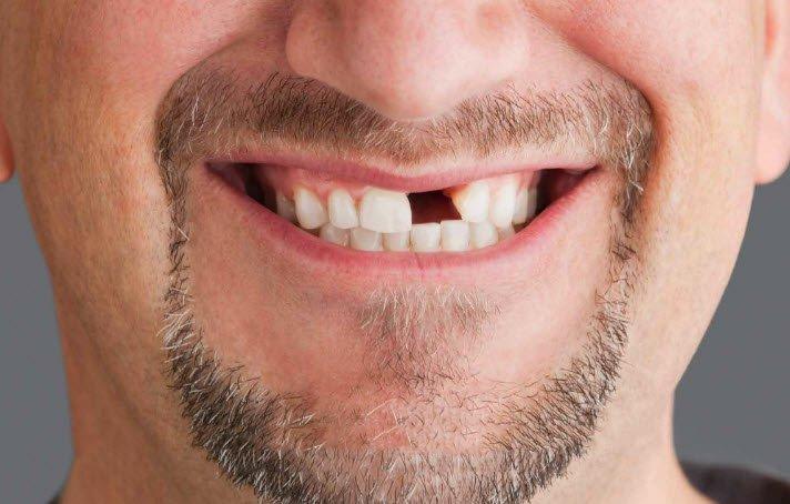 Emergency Dental Care, Dental Emergencies | Western Dental